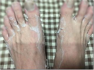 上げ郎の足が大変なことにっ!?足の皮がズルムけ放題じゃと!?(笑)